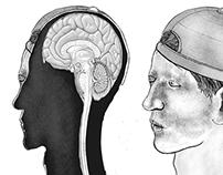Brain in Head (2015)