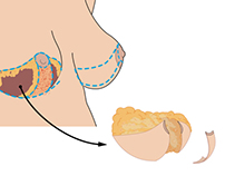 Subcutaneous Mastectomy in Female-to-Male Transsexuals