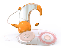 Cochlear Implant: Product Visualization