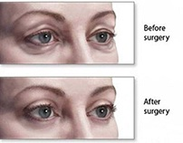 Cosmetic surgery on the eyes
