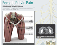 Female Pelvic Pain Poster