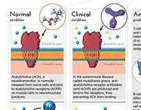 Myasthenia gravis infographic