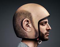 Campaign + Stunt / Hair Loss Awareness