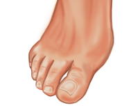 Chiropody Illustration Final, 2015