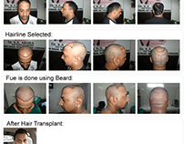 Why Should You Go With FUE Hair Transplant in Australia