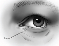 Surgical Illustration: Eye Tumor Removal