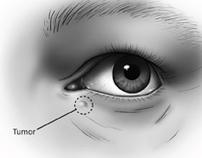 Surgical Illustration: Eye Tumor Removal