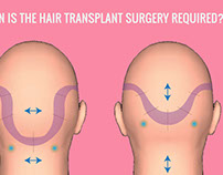 Hair restoration- Procedure and Factors to considered