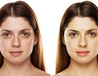 Natural Look. Model Retouch - Before/After