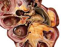 Kidney, Xanthogranulomatous pyelonephritis