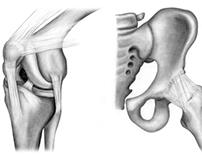 Medical illustration, Aventis Pharmaceuticals