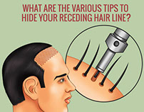 Tips to Hide your Receding Hairline