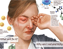 Allergies and histamine