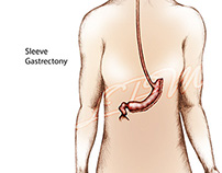 Medical Illustration, Sleeve Gastrectomy
