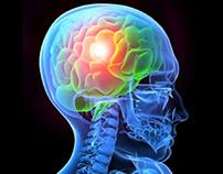 Brain cross-section