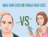 Male Hair Loss VS Female Hair Loss