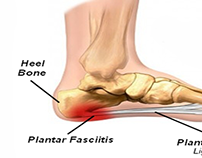 Project - Learning How To Treat Plantar Fasciitis