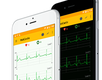 WebCardio: Cloud based holter monitoring