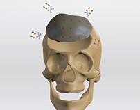 Skull Implant Procedure Visualisation