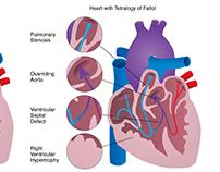 Heart with Tetralogy of Fallot
