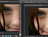 Face Black spot Correction in Photoshop