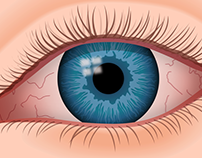 Eye Symptoms and the Underlying Conditions They Reveal