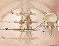 Kyphoplasty: Fixing Spinal Curves