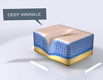 Anti-Wrinkle Patch