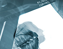 Fracture Diagnose