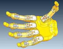 Dexterous Myoelectric Hand Prosthesis
