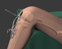 Rough Animation- Femur Fracture