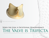 Trifecta Valve Digital Publication