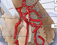 Circle of Willis - interpreted from angiogram images