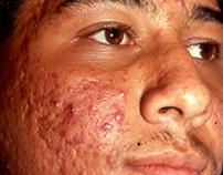 Retouch Acne-Skin-Face