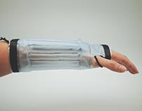 Pneumatic Splinting. An Alternative Splinting Solution.