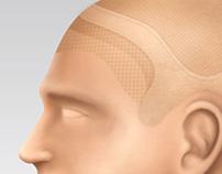 New Visual Hair - Ilustrações de Próteses