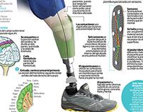 Crean prótesis sensible para pacientes amputados