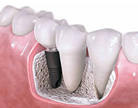 Pros And Cons Of Cheap Overseas Dental Implants