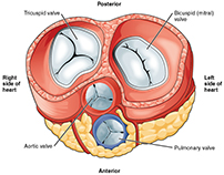 Aortic Valve Replacement in India