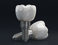 Implantes Dentales 3D / Social Media Ad