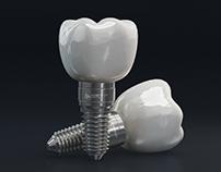 Implantes Dentales 3D / Social Media Ad