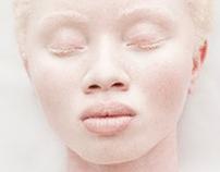 # Stop Albino Killings .gif
