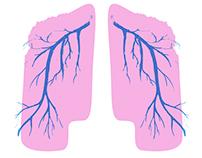 Nebraska Lungs