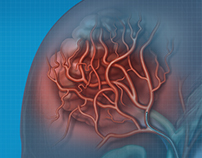 MEDICAL ILLUSTRATION: Hepatocellular carcinoma
