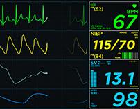 EKG Display Monitor