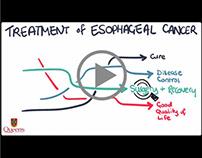 Explainer Video   Esophageal Cancer Treatment (Pt 2)