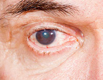 Cataracts - Symptoms and Treatment