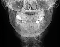 X-RAY DENTIST / Identity