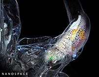 Sentinel - nano invasive complex