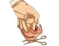 Ilustraciones Proceso Quirúrgico